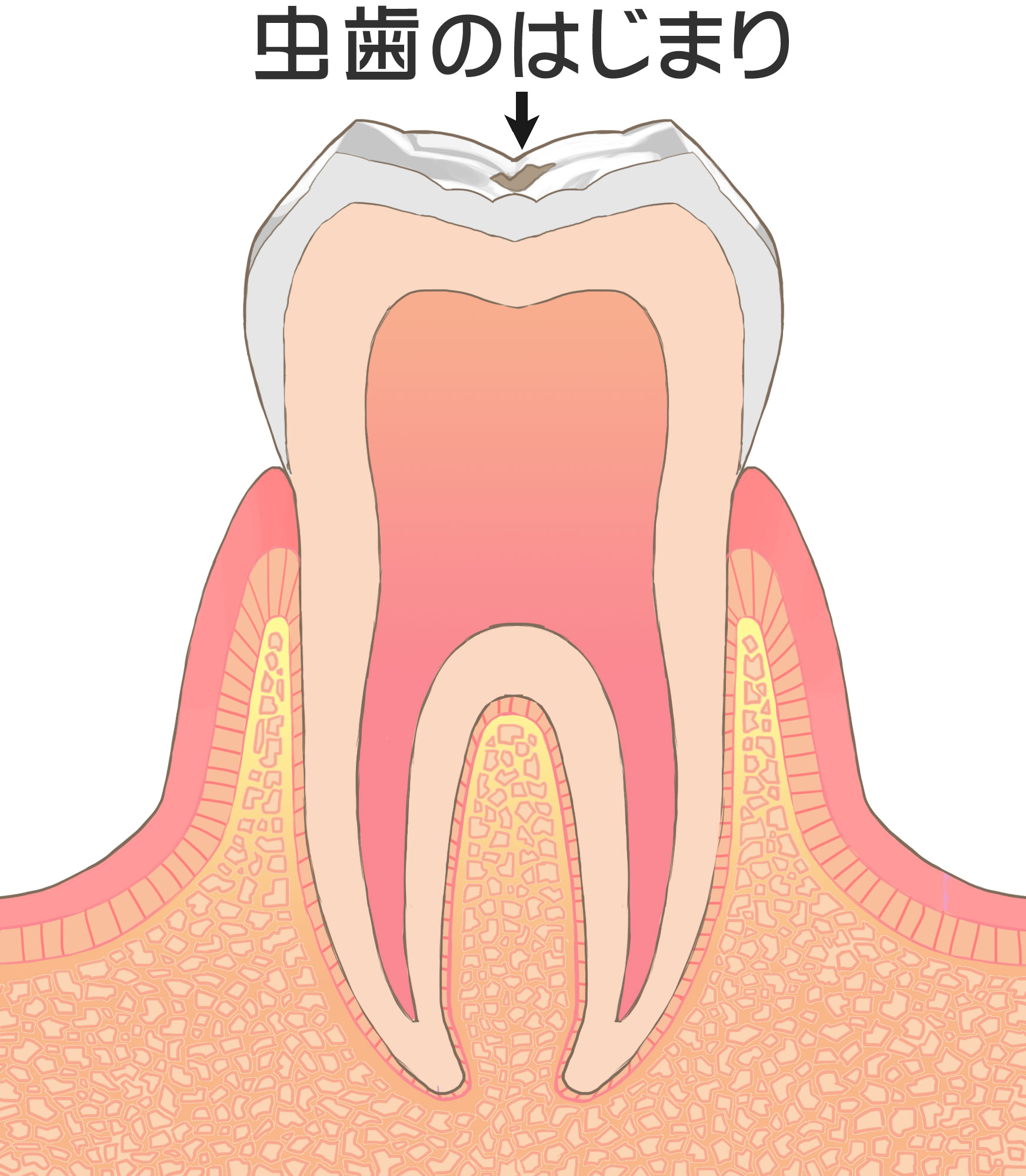歯の神経を残すことの大切さ