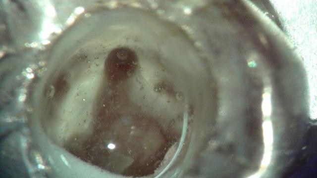 根管治療の症例写真3