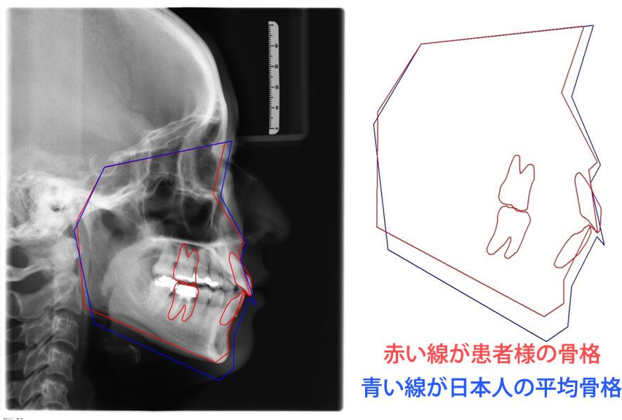 セファロを使った骨格比較