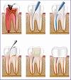 根管治療(歯科顕微鏡使用)