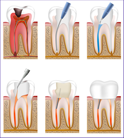 根管治療の説明画像
