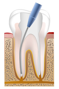 リーマーを使用した根管治療の写真