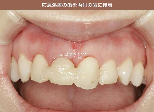 応急処置の歯を両側の歯に接着