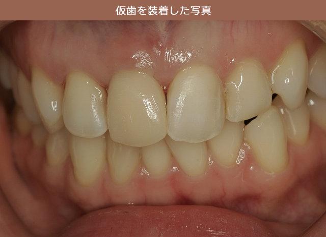 仮歯を装着し、歯ぐきのラインを形成した写真