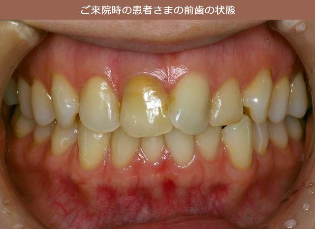 ご来院時の患者さまの前歯の状態