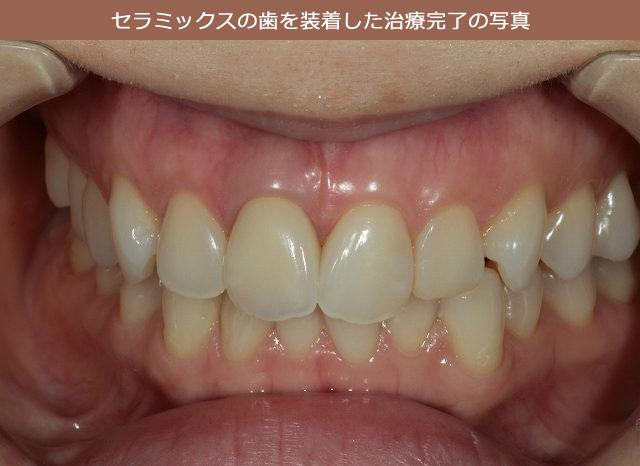 セラミックスの歯を装着した治療完了の写真