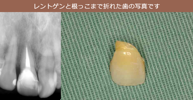 レントゲンと根っこまで折れた歯の写真です