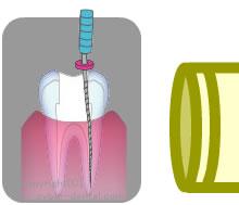 根管治療の流れ4