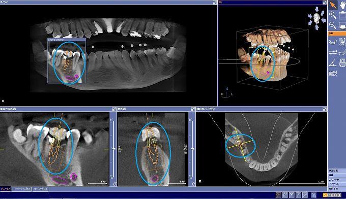 CTとサージカルガイドを使用したインプラント治療の流れ:step2
