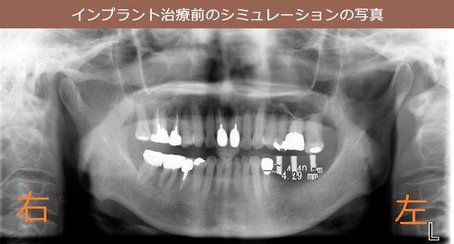 インプラント治療前のシミュレーションの写真