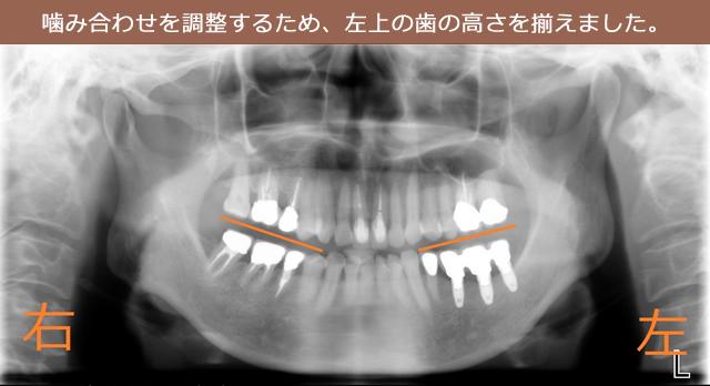 噛み合わせを調整するため、左上の歯の高さを揃えました。