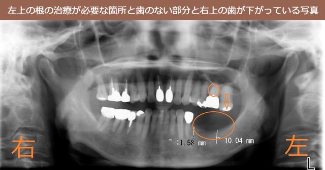 左上の根の治療が必要な箇所と歯のない部分と右上の歯が下がっている写真