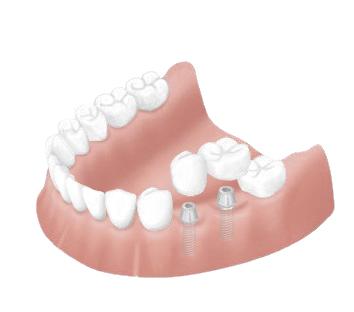 歯科インプラントの画像