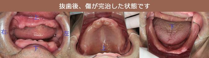 抜歯した傷が治るまで治療用義歯(入れ歯)を入れ、リハビリします