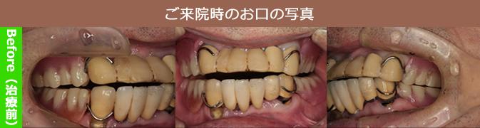 治療前のご来院時の患者さまのお口の写真(Before)