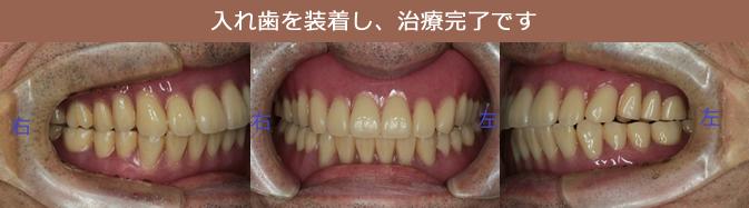 入れ歯を装着し、治療完了です