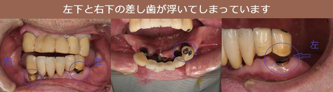 左下と右下の差し歯が浮いてしまっています