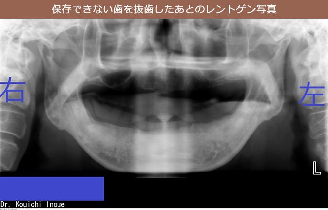 保存できない歯を抜歯したあとのレントゲン写真