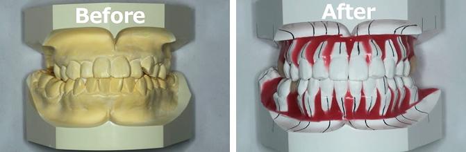 矯正のBefore&After模型画像