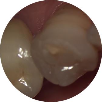 肉眼での歯の見え方