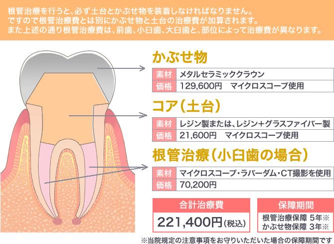 根管治療の治療費例