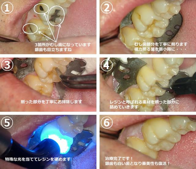 虫歯治療の画像