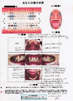 カウンセリング結果シート@井上歯科医院