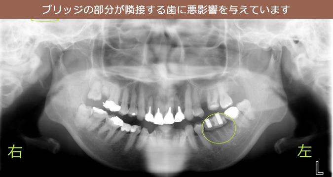 ブリッジの部分が隣接する歯に悪影響を与えています。