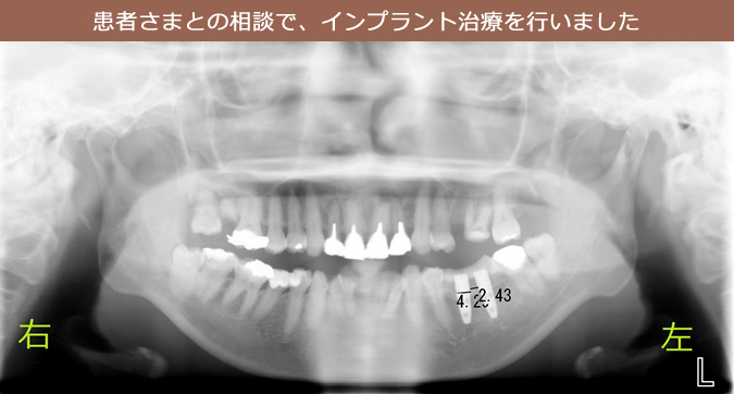 患者さまとの相談で、インプラント治療を行いました。