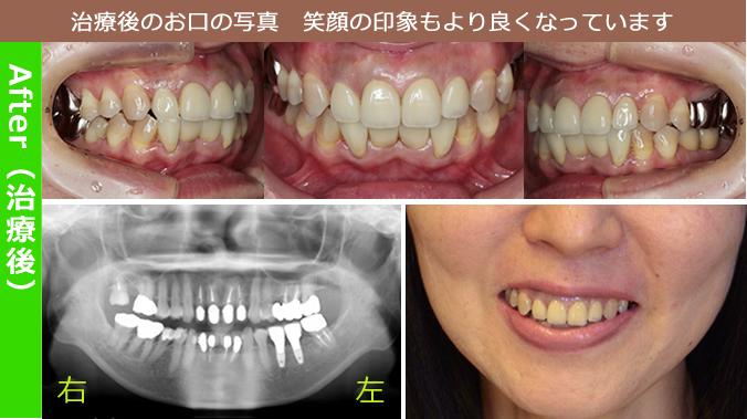 治療後のお口の写真 笑顔の印象もより良くなっています。