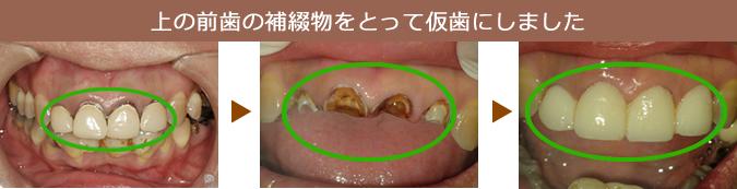 上の前歯の補綴物を取って仮歯にしました。