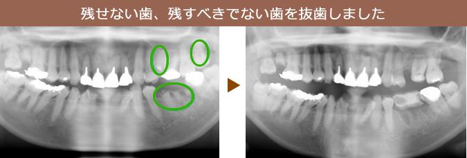 残せない歯、残すべきでない歯を抜歯しました。