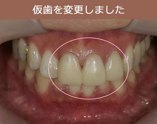 仮歯を変更しました