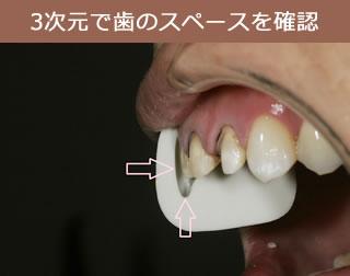 3次元で歯のスペースを確認
