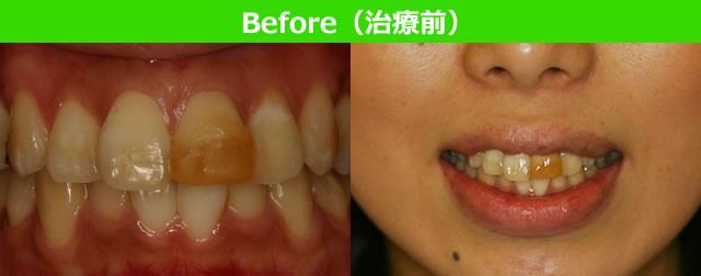 Before(治療前)