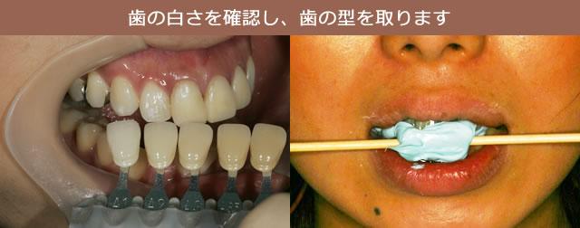 歯の白さを確認し、歯の型を取ります