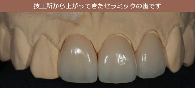 技工所から上がってきたセラミックの歯です