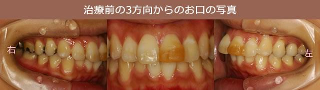 治療前の3方向からのお口の写真