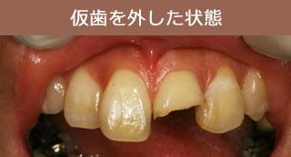 仮歯を外した状態