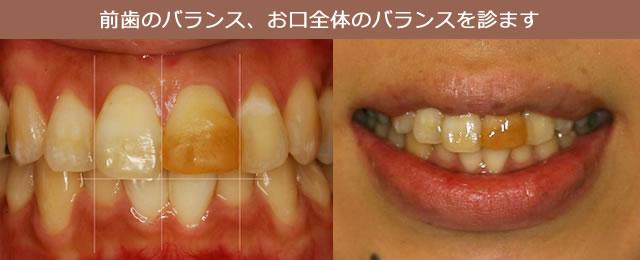 前歯のバランス、お口全体のバランスを診ます
