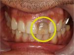 歯を削らずに前歯の根管治療