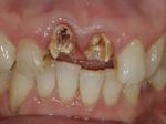 歯を抜かないエクストリュージョン法