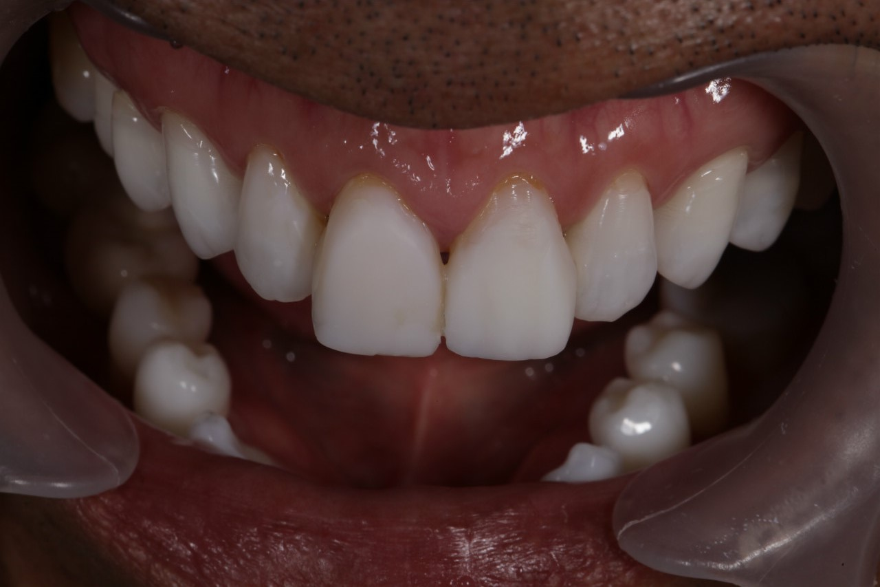 歯!歯!歯!