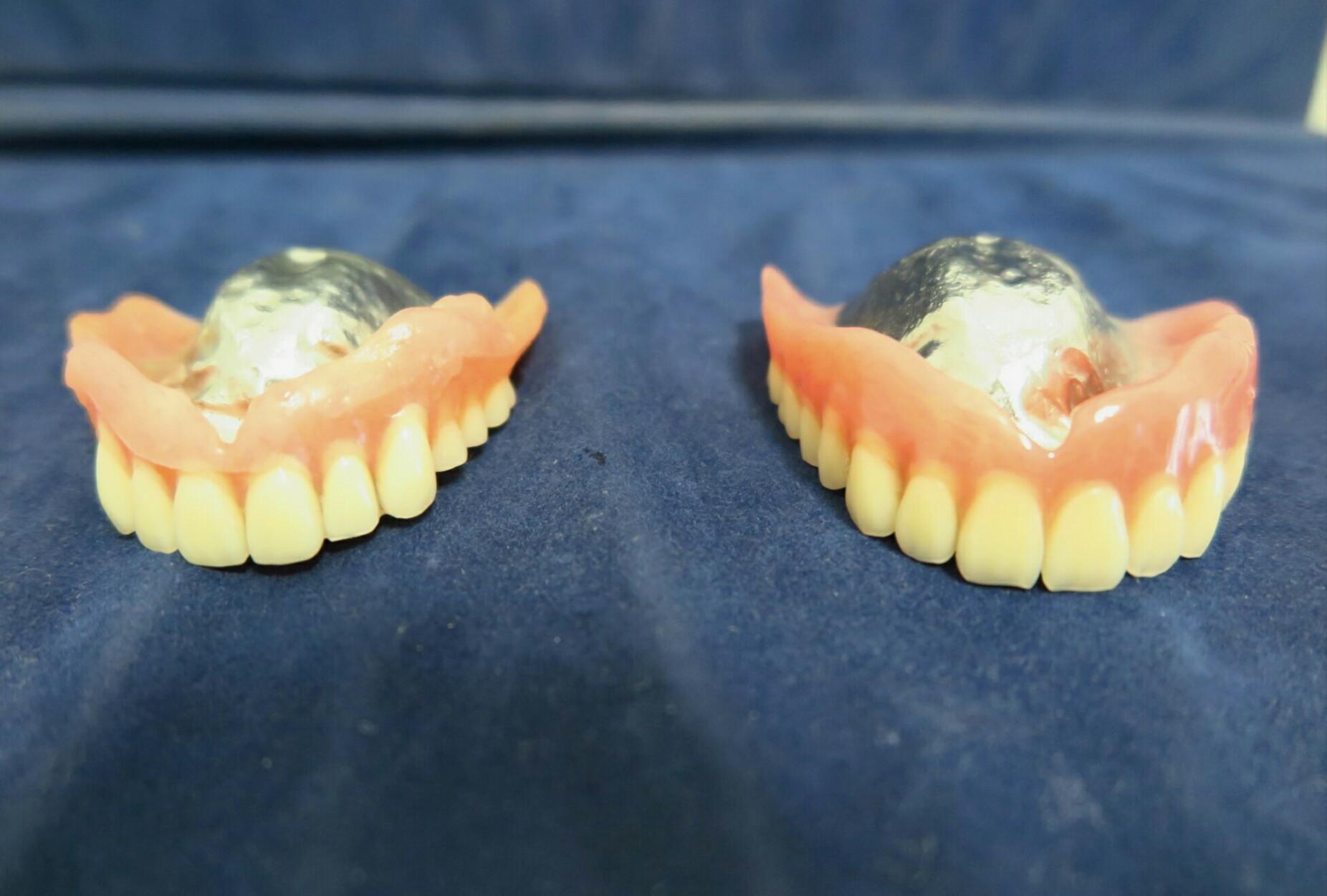 入れ歯の製作について