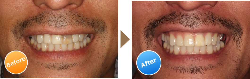 前歯の根管治療とインターナルブリーチング