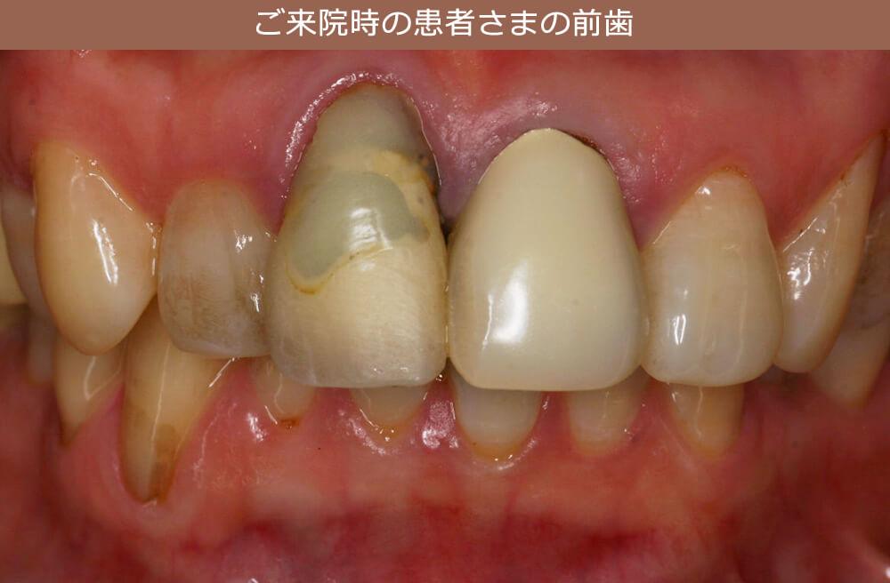 ご来院時の患者さまの前歯