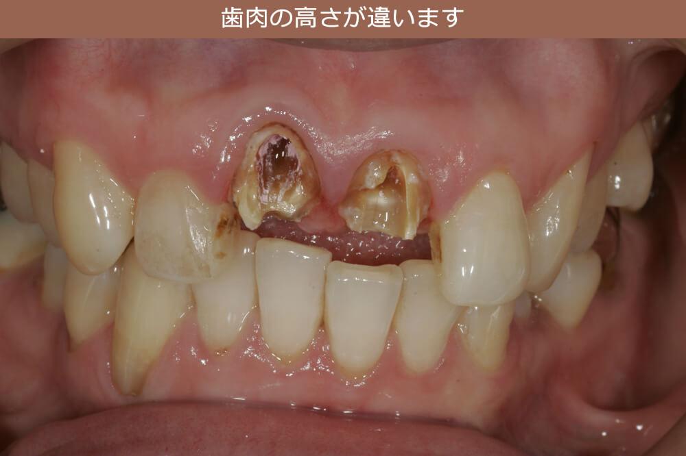 歯肉の高さが違います