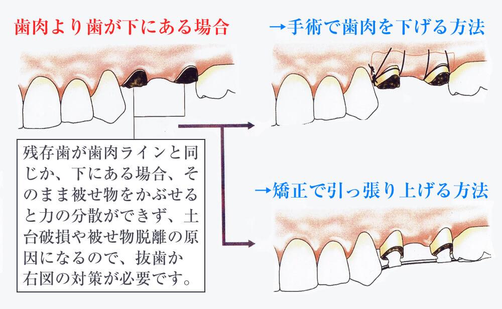 歯肉より歯が下にある場合の治療法