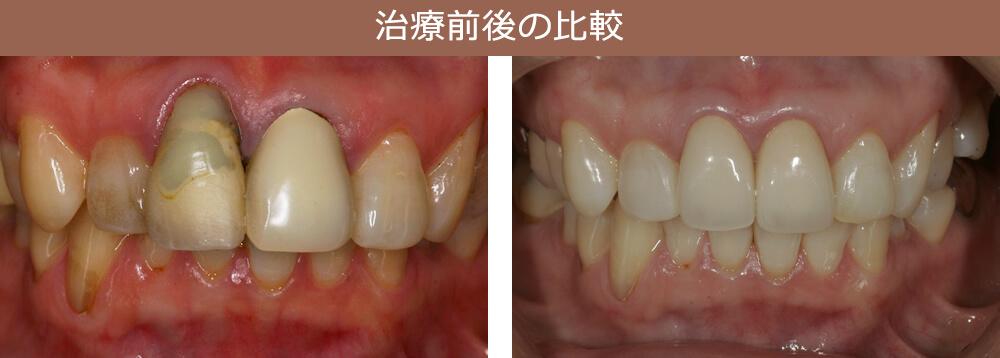 治療前後の比較