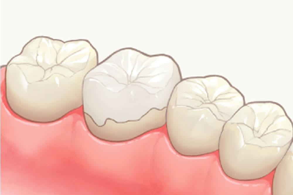 アンレー(歯冠の大部分を覆う詰め物)